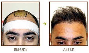 hair-fall-restoration-for-men-2 (1)