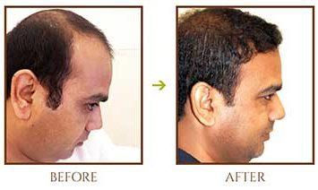 hair-fall-treatment-1 (1)