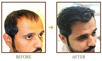 hair-transplant-for-men-1