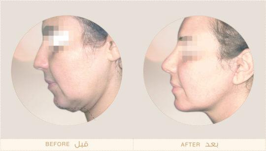 Facelift Surgery Dubai