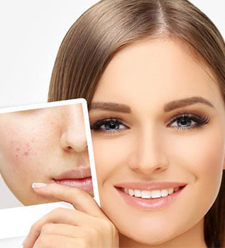 acne scar treatment cost