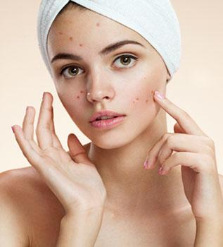 Acne treatment BMC