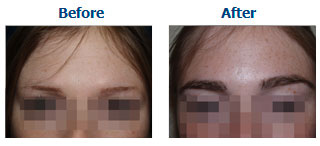 eyebrow hair transplant dubai