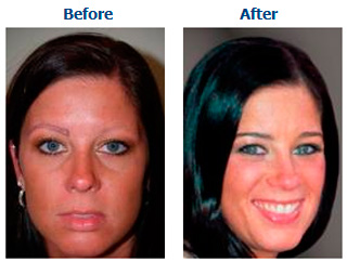 eyebrow transplant in dubai