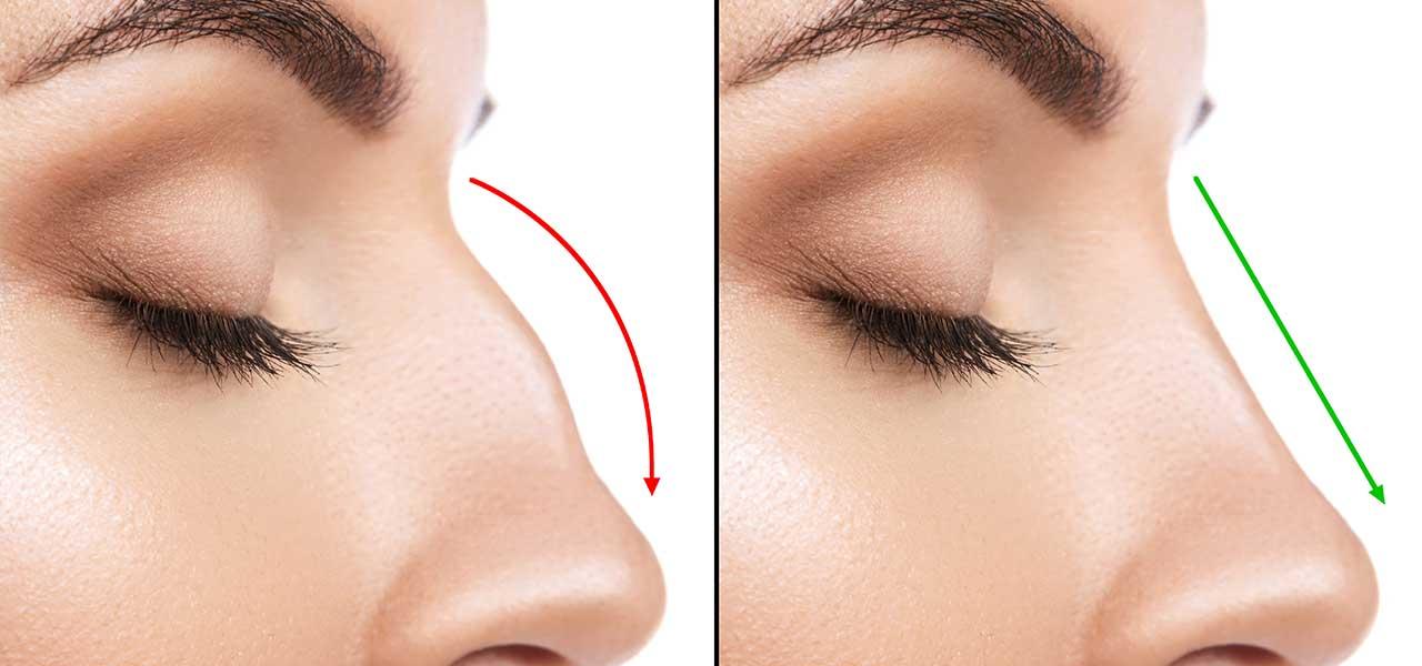 Hump nose treatment