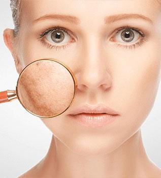 pigmentation treatment in bizrah medical center