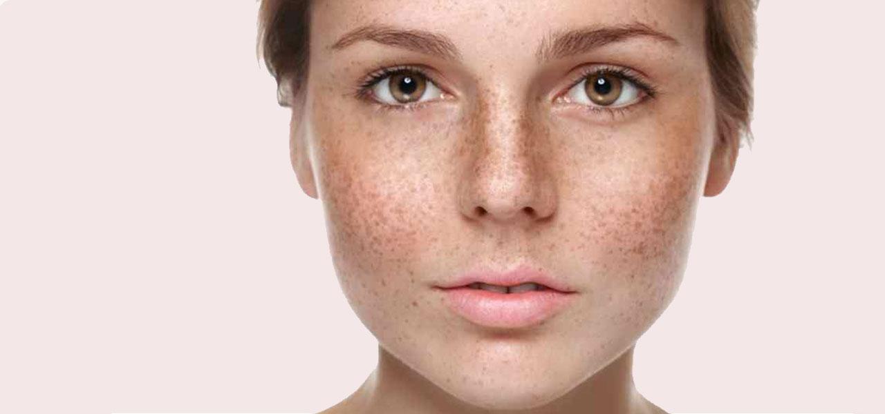 pigmentation treatment dubai