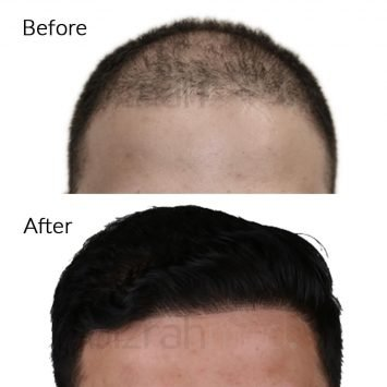 dubai hair transplant clinic