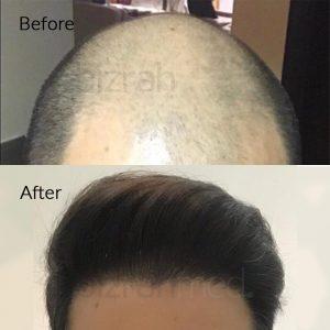 dubai hair transplant