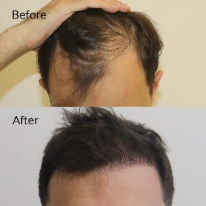 hair transplant dubai (UAE)