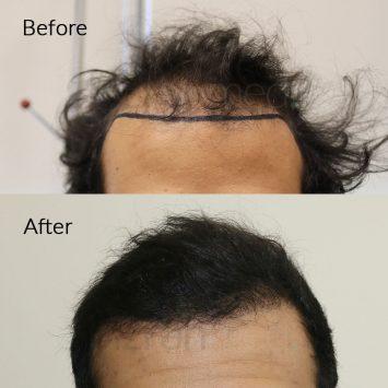 hair transplant clinic in dubai (UAE)