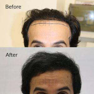 hair transplant in dubai (UAE)