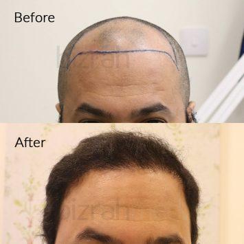 hair transplant clinic in dubai
