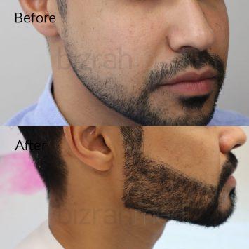hair transplant clinic dubai