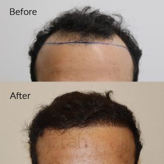 best hair transplant dubai before after