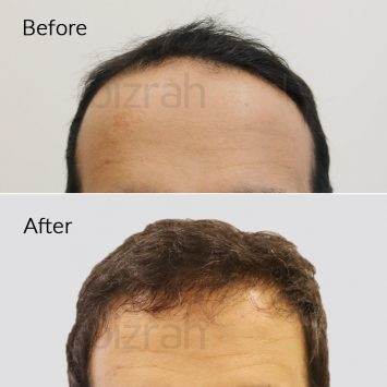 best hair transplant in dubai before after