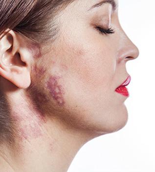 birthmark removal treatment