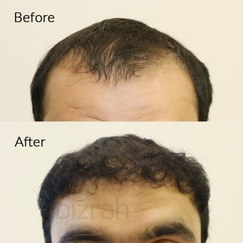 hair transplant clinic dubai before & after