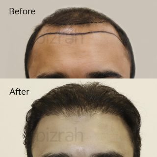 hair transplant clinic in dubai before and after