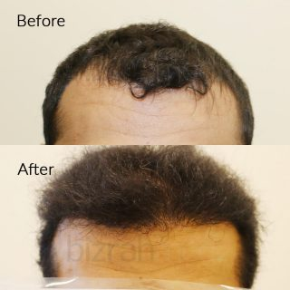 hair transplant cost in dubai before after