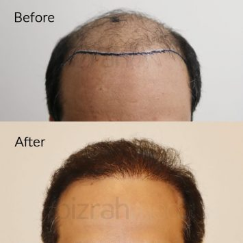hair transplant dubai before after