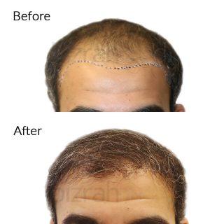 Hair Transplant Dubai - Bizrahmed