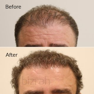 hair transplant in dubai before after