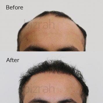 hair transplant in dubai - bizrahmed