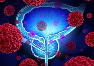 Prostate Cancer Treatment Dubai