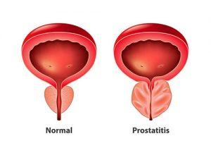Prostatis Treatment Dubai