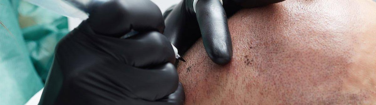 scalp micropigmentation dubai