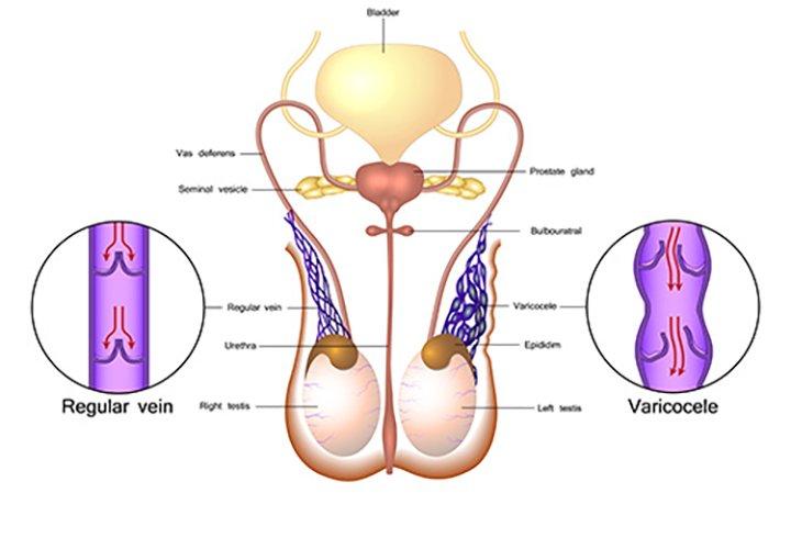 varicocele Treatment In Dubai