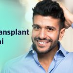 How To Choose The Best Hair Transplant Clinic In Dubai?