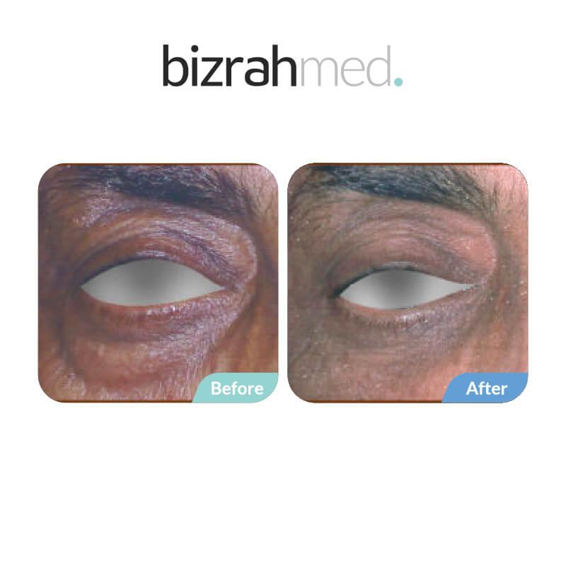 Blepharoplasty Surgery in Dubai