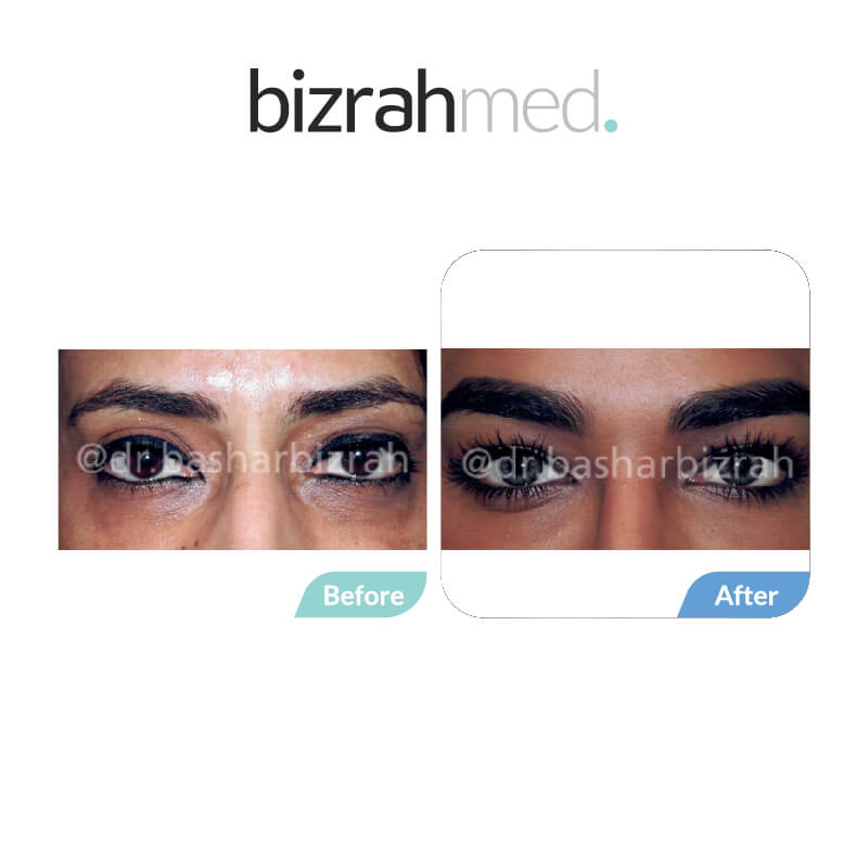 Blepharoplasty Eye Lift Dubai