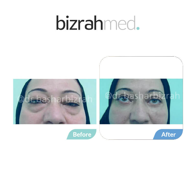 eye bag surgery in dubai