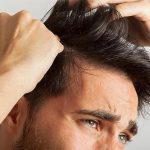 Does Hair Transplant Work To Fight Hair Loss?
