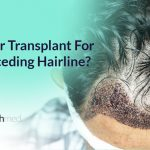 Does A Hair Transplant Work On A Receding Hairline?