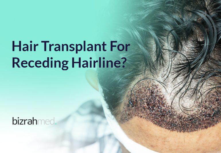 Best Hair Transplant In Dubai