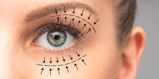 eyelid surgery dubai
