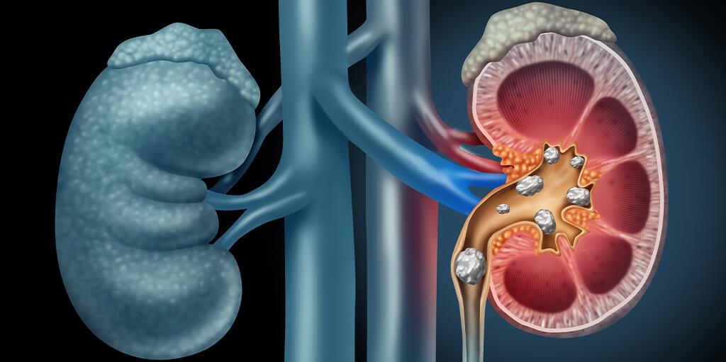 treatment for kidney stones in Dubai