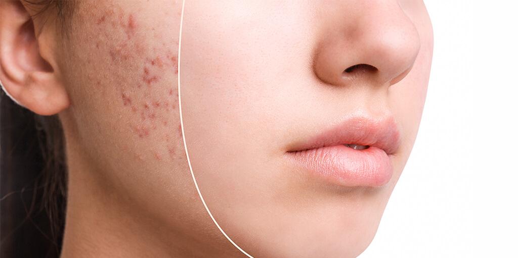 Acne removal in dubai