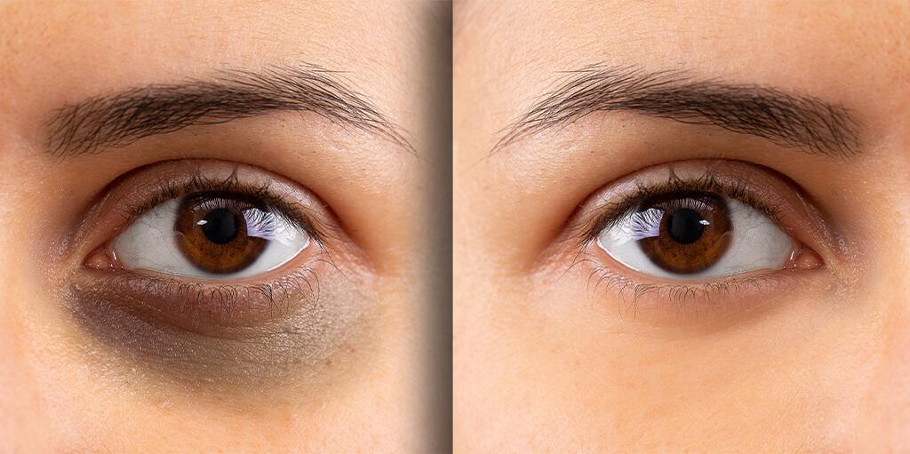 dark circles under eye treatment in dubai