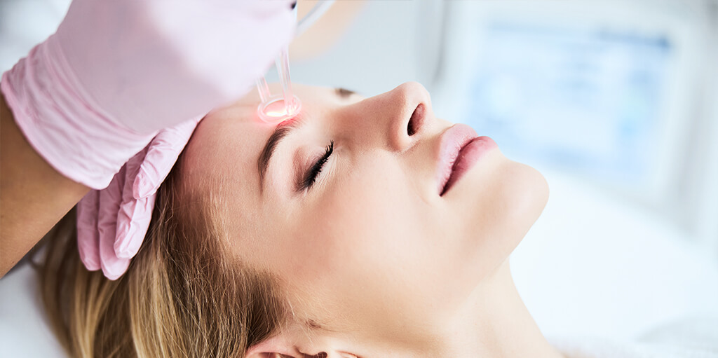 acne scars fractional co2