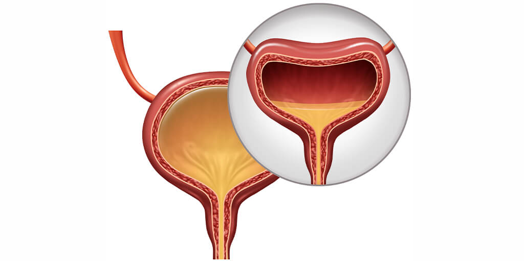 Overactive Bladder Causes