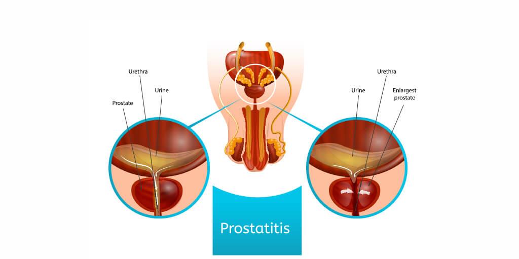 Treatment for Prostatitis