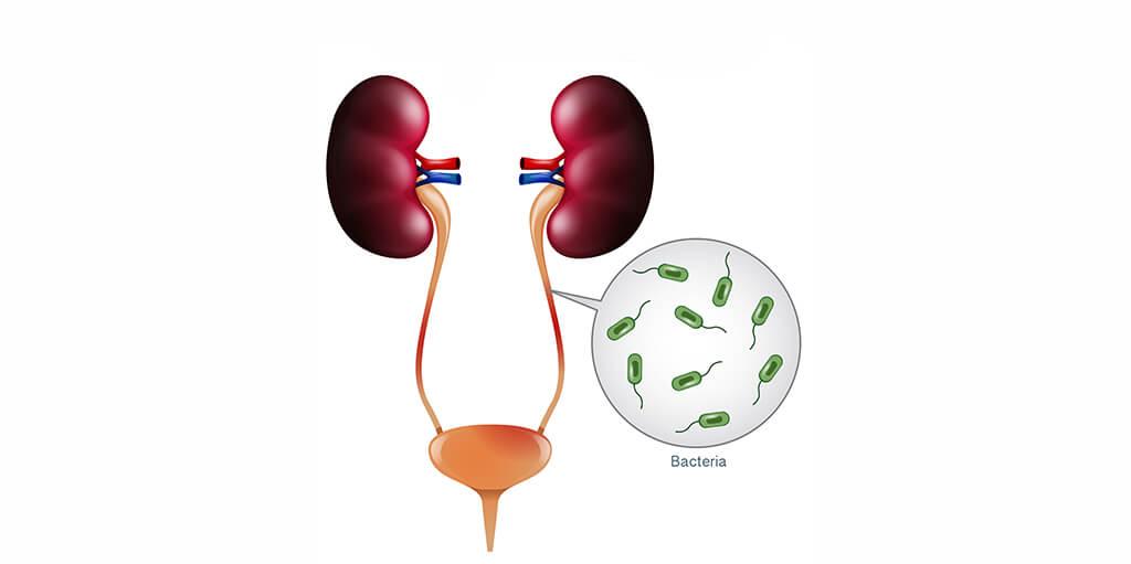 Urinary Tract Infection Treatment Dubai