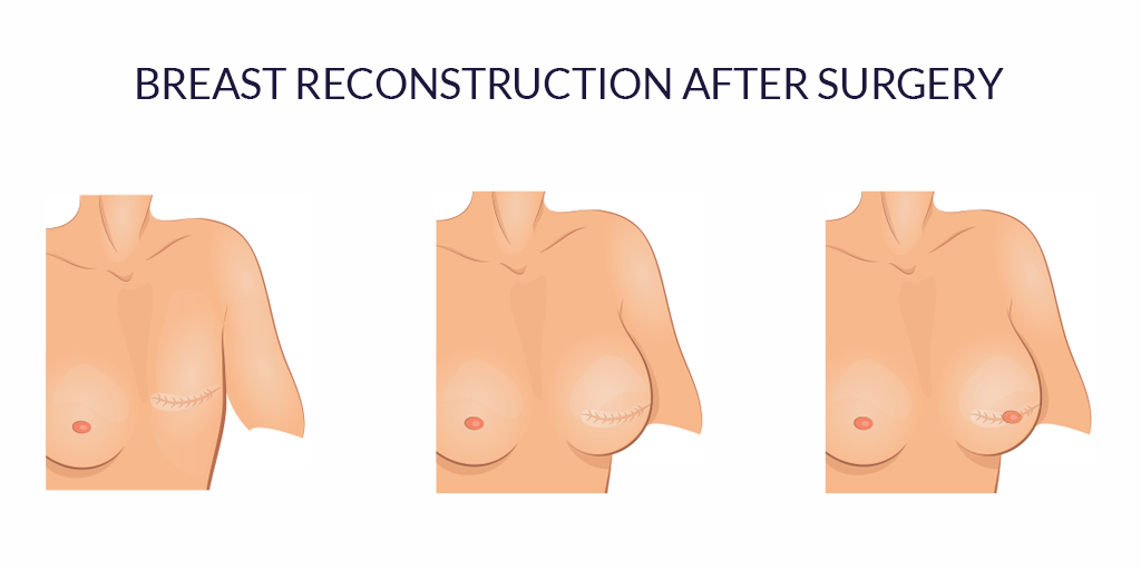 Breast Reconstruction After Masectomy